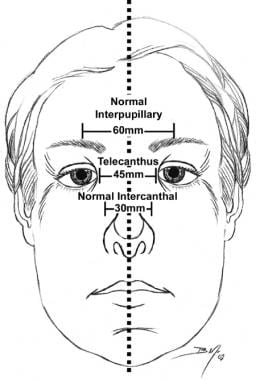 Midface dimensions are depicted. A normal intercan