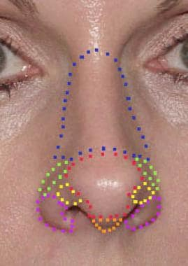 Aesthetic subunits of the nose: Nasal dorsum (blue