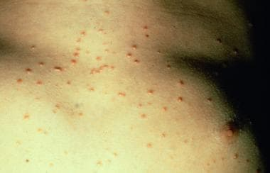 Guttate psoriasis. The distinctive, acute clinical