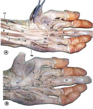 Palmar structures of the left hand. In A, the flex