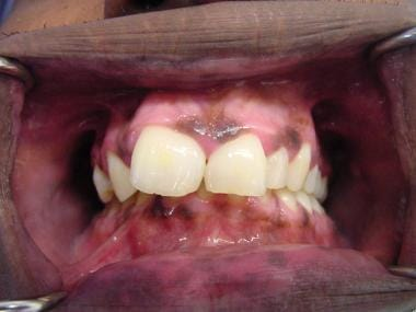 This photograph shows an oral pigmented lesion in
