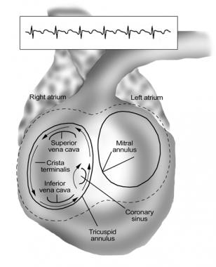 Schema of the common variety of atrial flutter (co