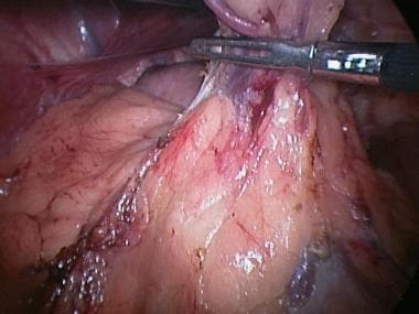 Laparoscopic splenectomy. Blunt grasper used to mi