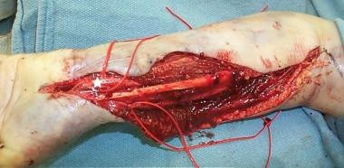 Forearm after compartment release. Median nerve de