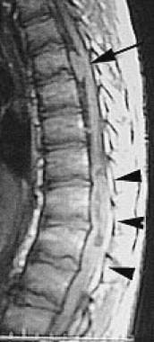 Sagittal T1-weighted postcontrast image of the tho