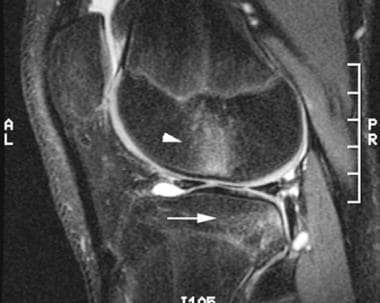 Sagittal T2-weighted image of the knee 2 weeks aft
