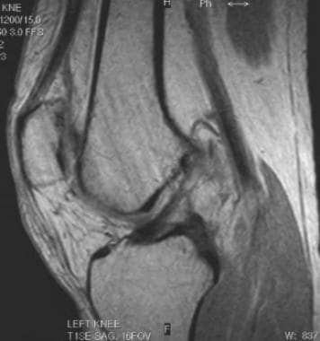 Chronic tear of the ACL, with false-negative MRI r