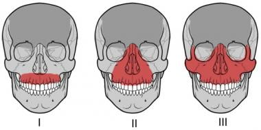 LeFort fractures of the maxilla.