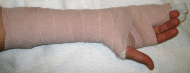Ulnar gutter splint. Image courtesy of Kenneth R C