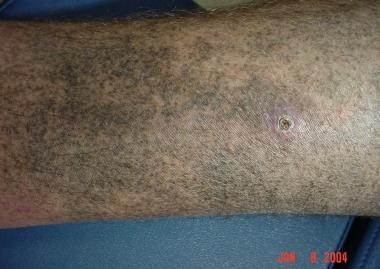 Minocycline pigmentation of the lower leg.