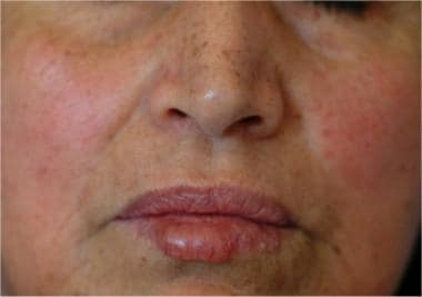 About 75% of patients have cheilitis, which can ta