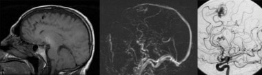 Cerebral aneurysms. Aneurysm associated with an ar
