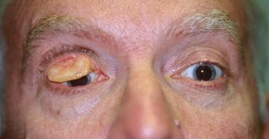 Trachoma of upper lid. The trachomatous right uppe