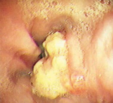 Endoscopy demonstrating intraluminal esophageal ca