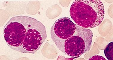Bone marrow aspirate showing erythroid hyperplasia