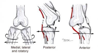 Types of knee dislocation.
