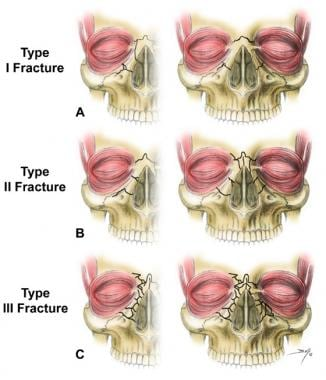 Nasoorbitoethmoid complex fractures are classified