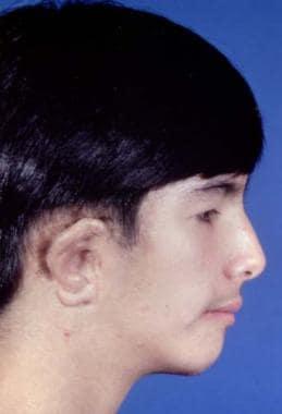 Craniofacial Syndromes: Crouzon, Apert, Pfeiffer, Saethre