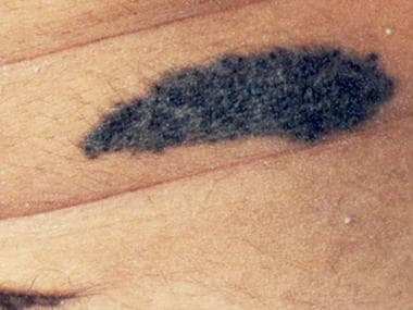 Congenital nevomelanocytic nevus of the abdomen wi