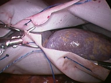 Laparoscopic splenectomy. Placing spleen in retrie