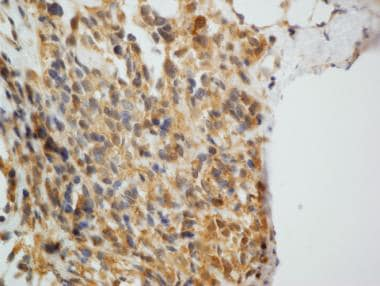 Immunostaining for Neuron Specific Enolase (NSE) i