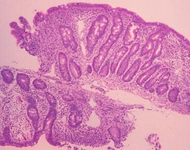 Sprue. High-powered photomicrograph of a duodenal