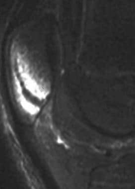 Magnetic resonance image of an occult patellar fra