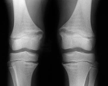Radiograph of the knees of an 11-year-old boy with