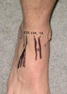 Anatomic landmarks for ankle arthrocentesis. EDL =