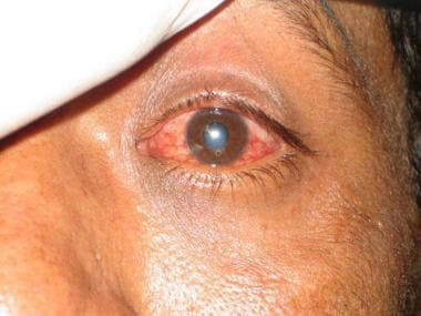 Corneal Foreign Body Removal: Overview, Indications, Contraindications