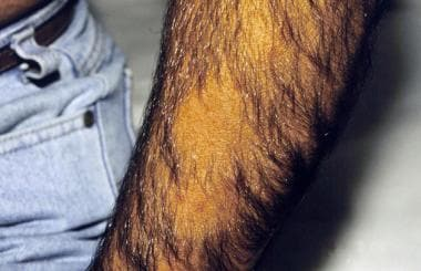 Alopecia areata affecting the arms.