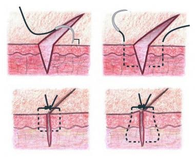 Simple interrupted suture placement. Bottom right