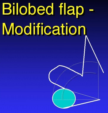 Bilobed flap modification.