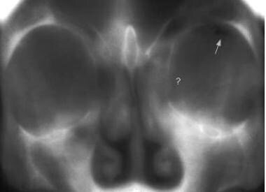 Conventional frontal tomograph of a blow-out fract