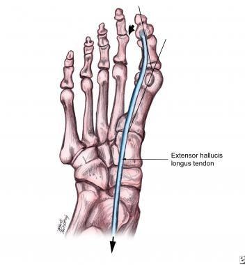 Hallux Valgus Background Anatomy Pathophysiology
