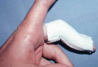 A skin-tight plaster cast can effectively hold the