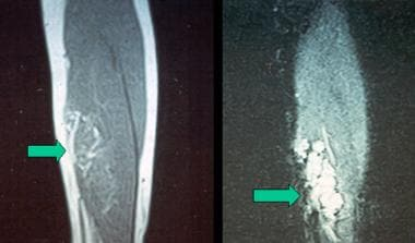 T1 and T2 MRI images of intramuscular hemangioma o