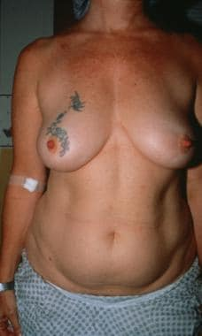 Patient 2: A full C cup breast and an ample abdome