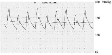 Recording of aortic pressure showing pulsus parado