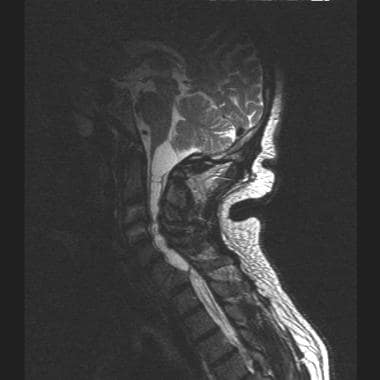 T2-weighted sagittal image of large, multiloculate