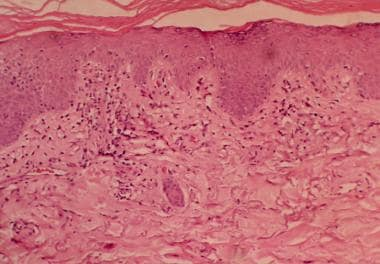 Histopathology of dermatomyositis is interface der