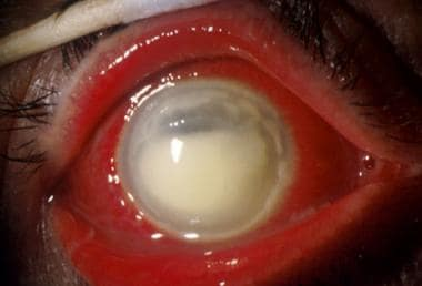 Stromal haze with opacification of the cornea.