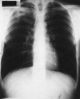 Empyema and Abscess Pneumonia Workup: Laboratory Studies