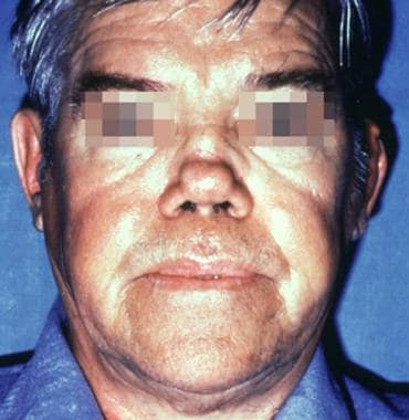 Patient with a history of relapsing polychondritis