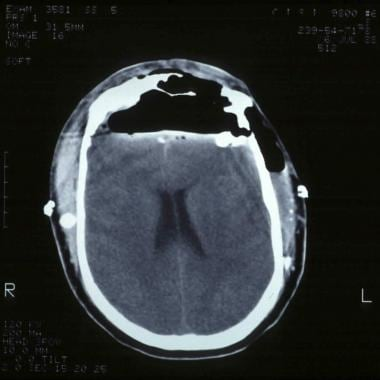 CT scan axial view demonstrating a tension pneumoc
