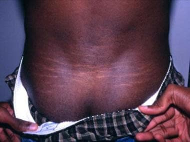 Stretch marks (striae atrophicae) in the lower bac
