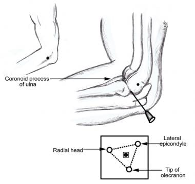 Injection of lateral epicondyle.
