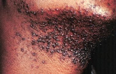 Man with pseudofolliculitis barbae on his neck.