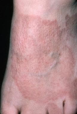 Sarcoidosis, cutaneous. The cutaneous manifestatio