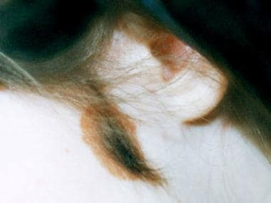 Congenital nevomelanocytic nevus of the cheek with